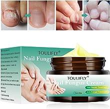 Nail Fungus Cream,Toenail Fungus Treatment,Nail Fungus Remover,Toenail Fingernail Fungus Remover Fungus Stop Cream