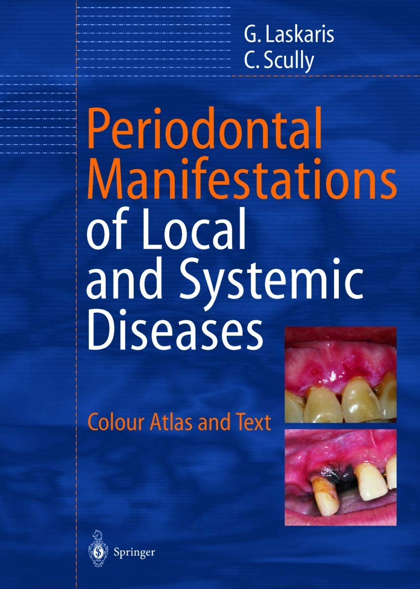 Image OfPeriodontal Manifestations Of Local And Systemic Diseases: Colour Atlas And Text