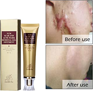 Best removing pimple marks cream Reviews