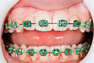 Amazon com: fake braces