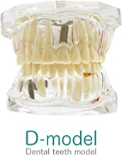 Amazon.es: modelo dental