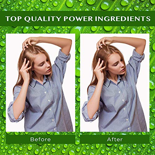 Natural Hair Growth Oil with Caffeine and Biotin - Hair Growth Oil for Stronger, Thicker, Longer Hair 1.7 oz