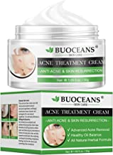 Best acne and pimple cream himalaya Reviews
