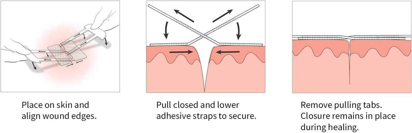 Clozex Emergency Laceration Closures - Repair Wounds Without Stitches. FDA Cleared Skin Closure Device for 3 Individual Wounds Or Combine for Total Length of 4 1/4 Inches. Life Happens, Be Ready! : Health & Household