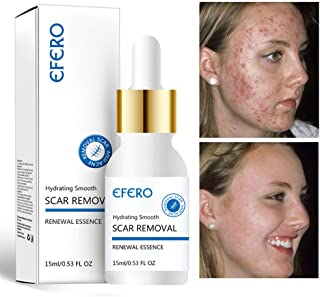 RONSHIN Antiarrugas Hidratante Acn¨¦ Soluci¨®n de esencia de rejuvenecimiento de poros finos Lifting Reafirmante Cuidado facial de la piel Productos de cuidado
