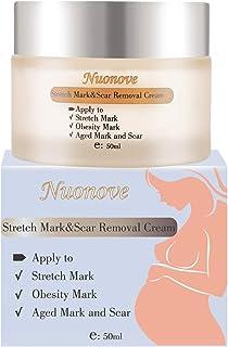Crema Antiestrias Embarazo Crema para Estrías Eliminar Cicatrices del Embarazo Stretch Marks Cream Loción corporal Cr...