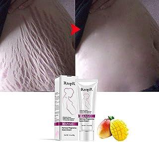 Lispeed Scars Acne Remover Cream Mango Remove Pregnancy Scars Acne Cream Stretch Marks Treatment