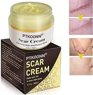 Cicatrices CremaReparacióN De La Piel CremaCicatrices TratamientoAnti Acné Crema Reparadora Para QuemadurasCara Y Cuer...