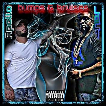 Bumps & Bruises (feat. Apollo)