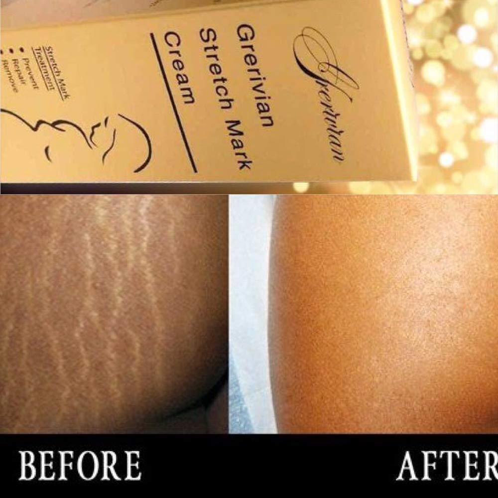Grerivian Maximum Strength Stretch mark cream for Pregnancy & Scar Removal - Intense Stretch Mark Treatment - Helps Improve and Prevent Stretch Marks - Collagen, Vitamin E.