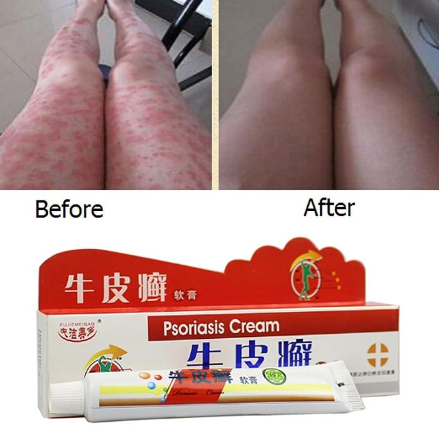 楕円形ジュニア渇きBalai 乾癬クリーム 中国のハーブ抗菌軟膏クリーム 湿疹乾癬 治療かゆみ止めクリーム