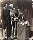 Reginald Southey (1835-1899) Nenglish Physician Posed With The Skeletons And Skulls Of A Human And An Ape Photograph By Charles Lutwidge Dodson (Lewis Carroll) 1857 Poster Print by (18 x 24)