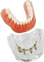 Dentalmall Dental Overdenture Teeth Model Inferior Precision Implants Demo Golden Color