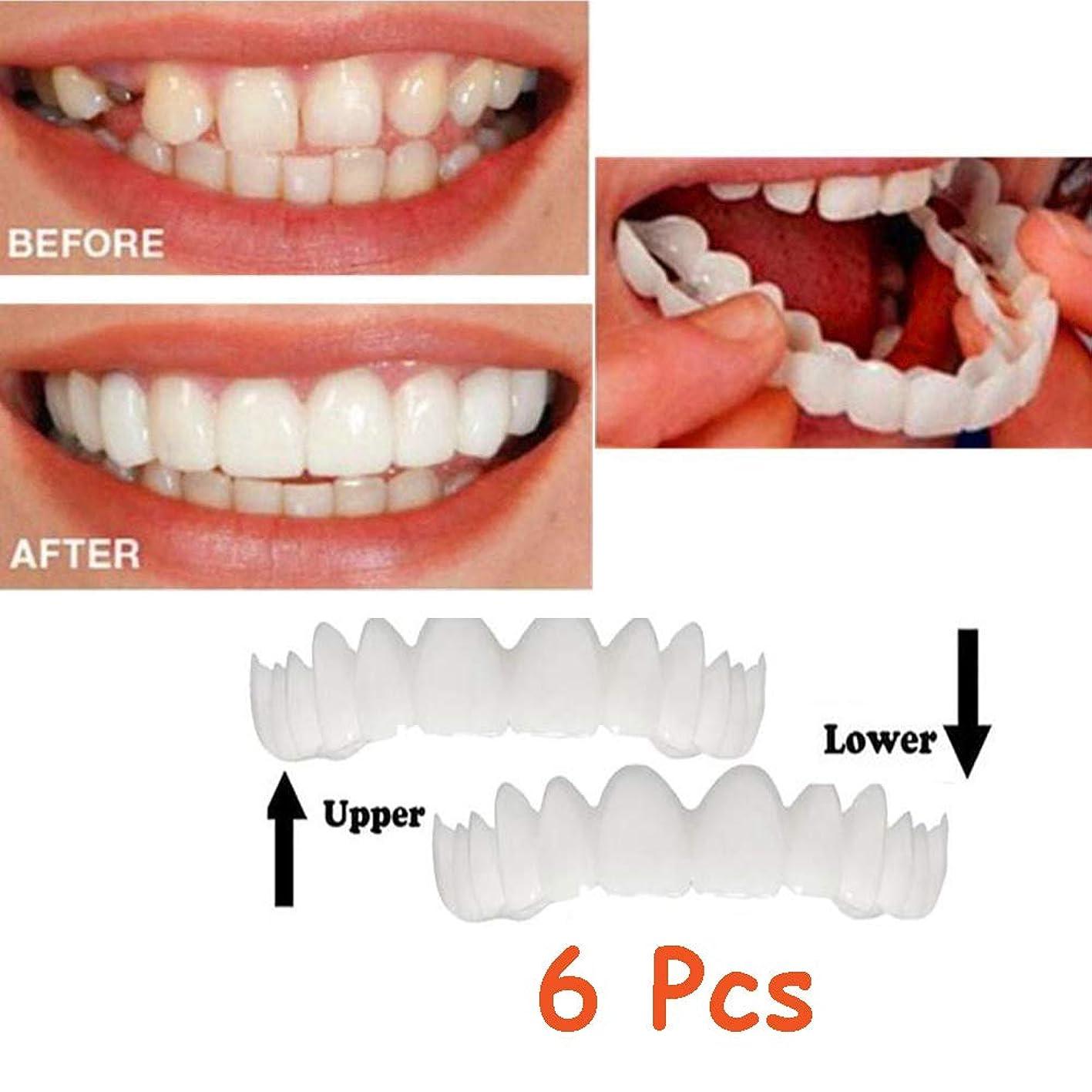 ジェーンオースティンライオネルグリーンストリート男性6本のシリコーンのベニヤ歯の義歯インスタントスマイルコンフォートフィットフレックス化粧品補正義歯入れ歯悪い歯黒い歯ホワイトニング(下+上)