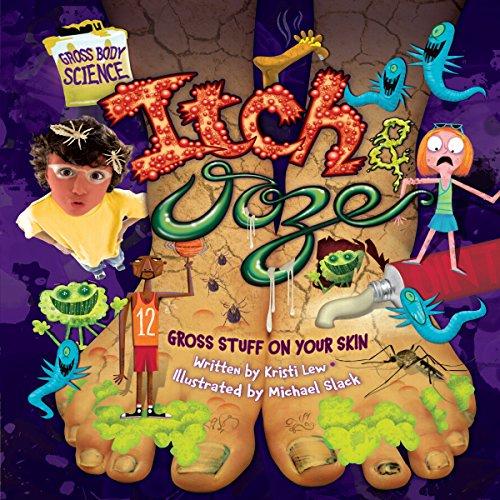 Itch & Ooze copertina
