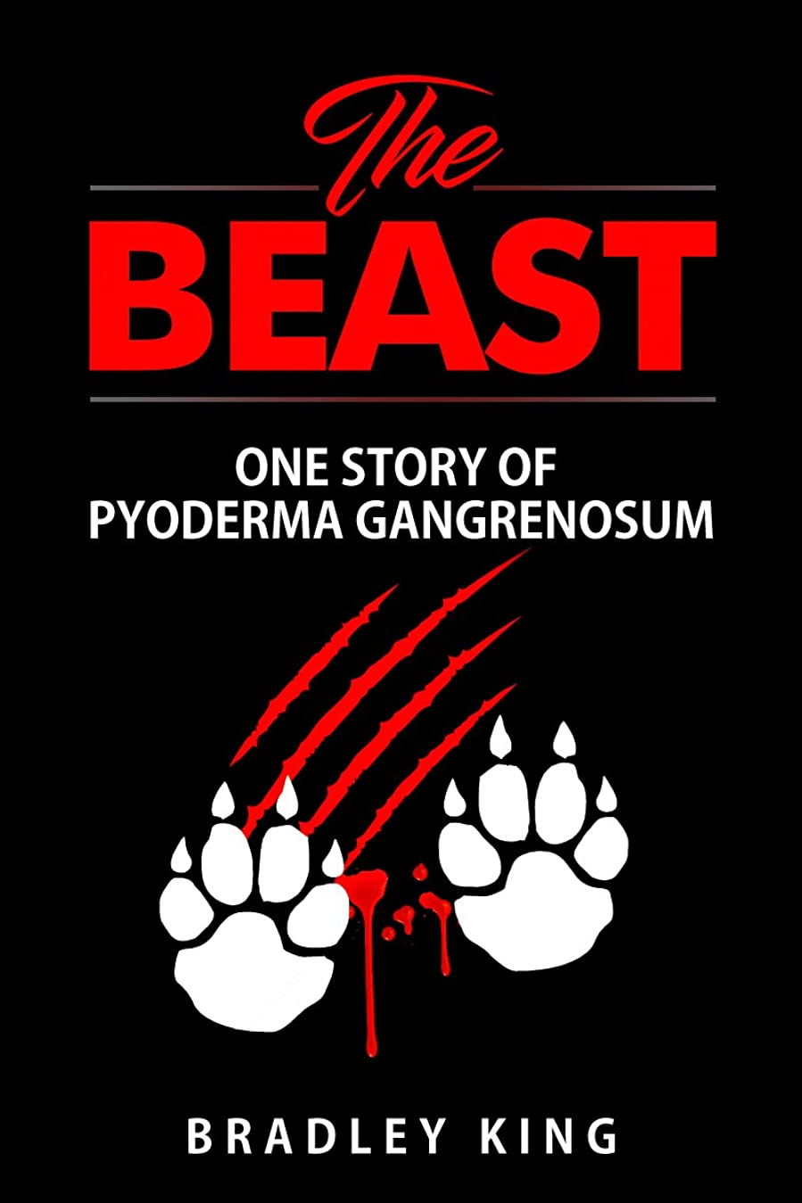 意気込みカウントリビングルームThe Beast: One Story of Pyoderma Gangrenosum (English Edition)
