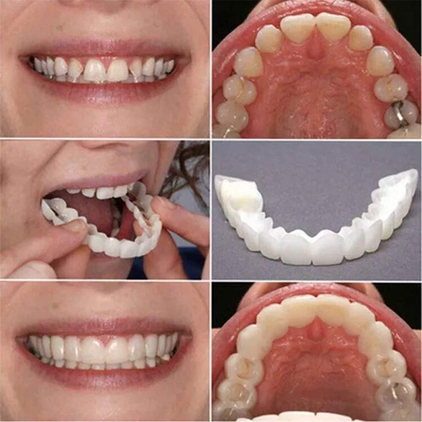 弱い電気陽性彼女2個の歯ピースフィッティング快適なフィット歯のソケット義歯口腔用品矯正アクセティース 笑顔を保つ