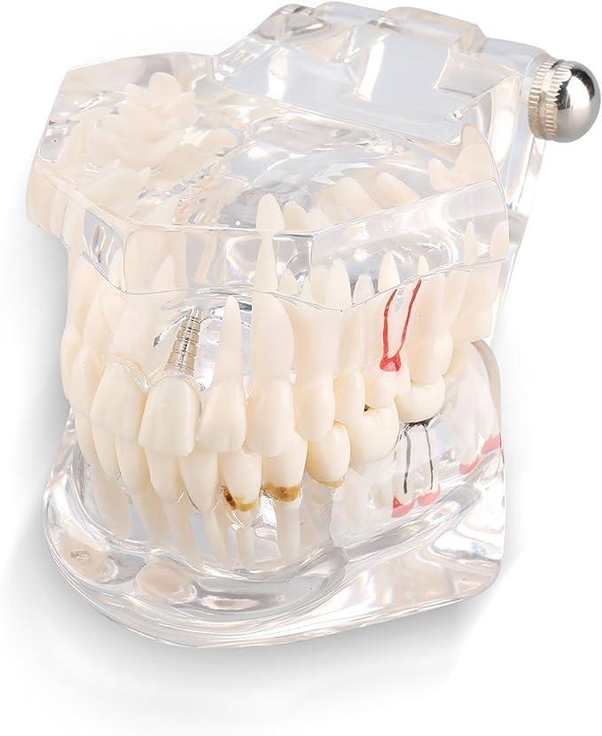 114 opinioni per Yosoo Trasparente Modello Dentistico Rimovibile Orale Dental Attrezzo Pedagogico