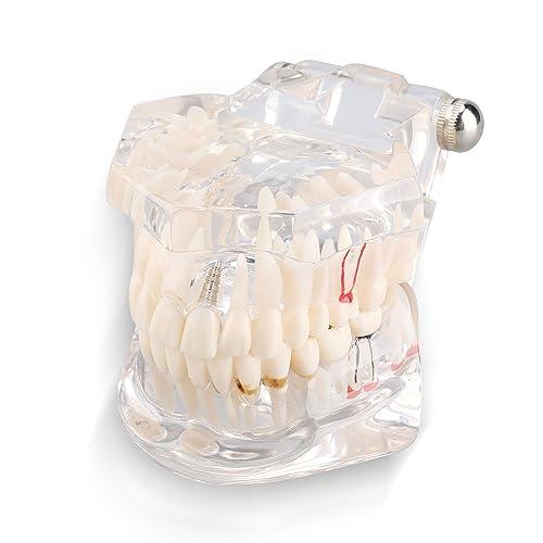 Yosoo Dentadura transparente para estudio y enseñanza, modelo desmontable Dental pedagógico