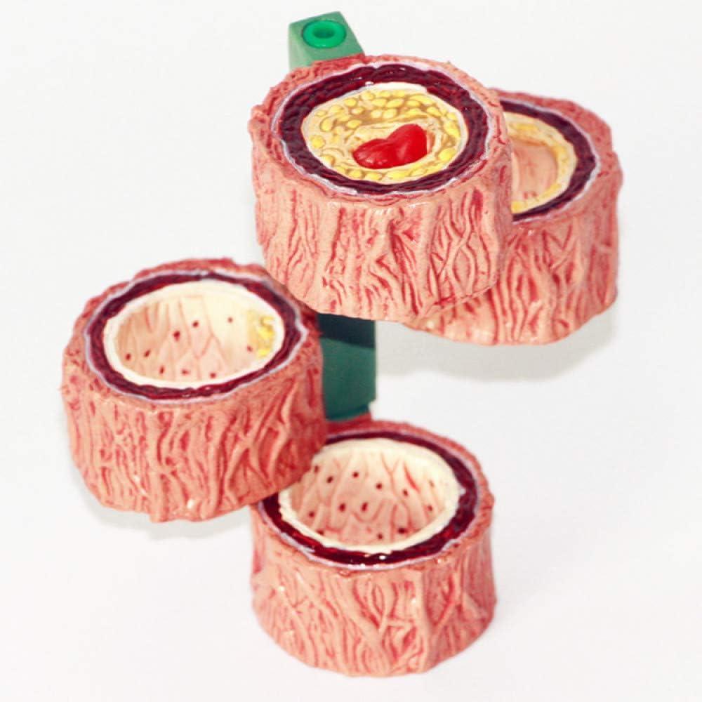 YUANZHOU Thrombus Model Atherosclerosis Memphis Mall Superlatite Vascular