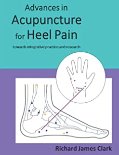 Advances in acupuncture for heel pain: towards integrative practice and research