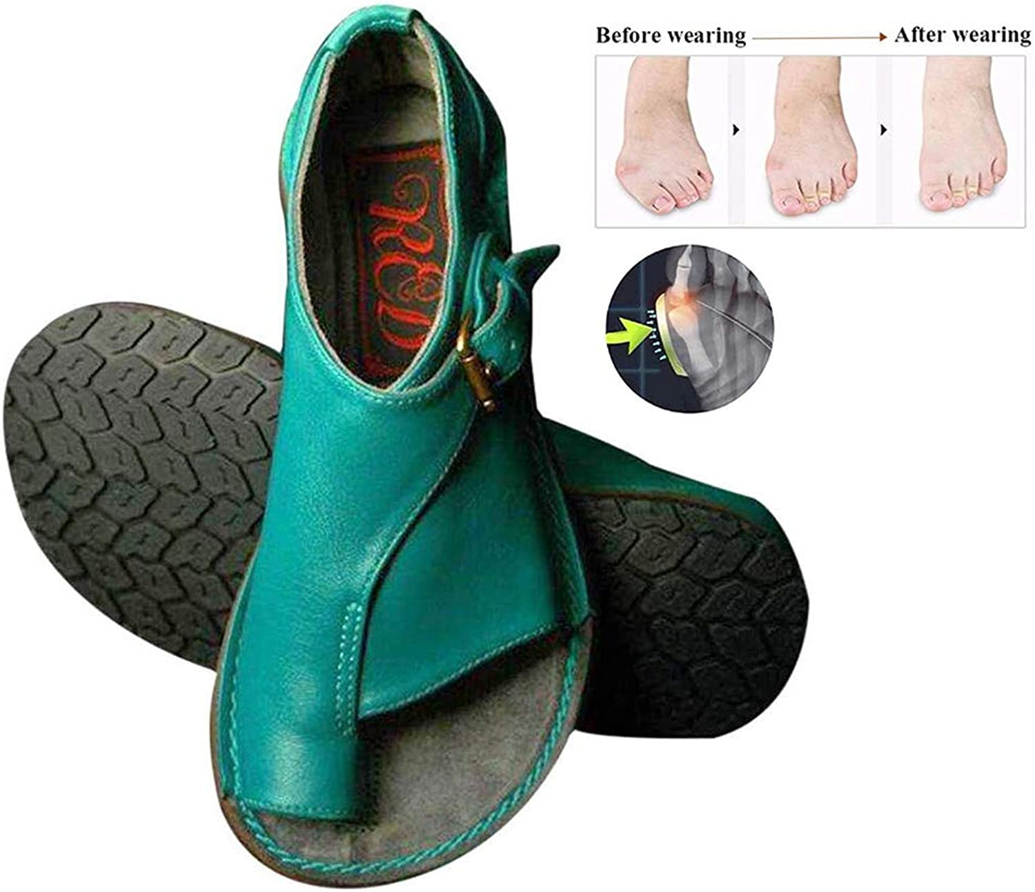 Foot Correction Summer Women Sandals shoes Flat Sole PU Leather Slippers Non Slip Wear Resistant Comfortable Slippers for Orthopedic Big Toe Bone Correction Beach Travel (bluee),bluee,37