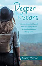 Deeper Than the Scars: A Journey from Cleft Lip and Palate and Self-Rejection to Re-Established Identity Through Christ