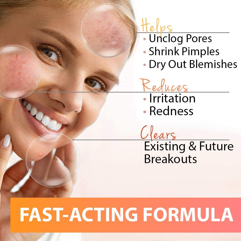 Acne treatment overnight redness 3 Ways