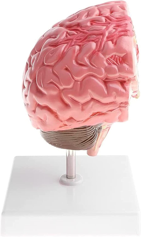 Human supreme Brain Pathology Model Cerebral Hemorrhage Lab Su for Department store
