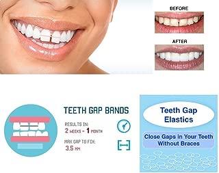 IVORIE Teeth Gap Bands Orthodontic Bands Clear Dental Elastic Bands 100/Pk (1/4