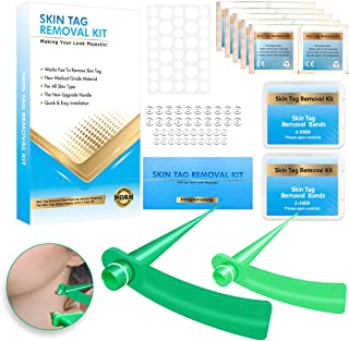Skin Tag Remover, Kilobey Skin Tag Removal Device for Small to Large Sized(2mm to 8mm)Skin Tags. No Pain and Safe. Remove ...