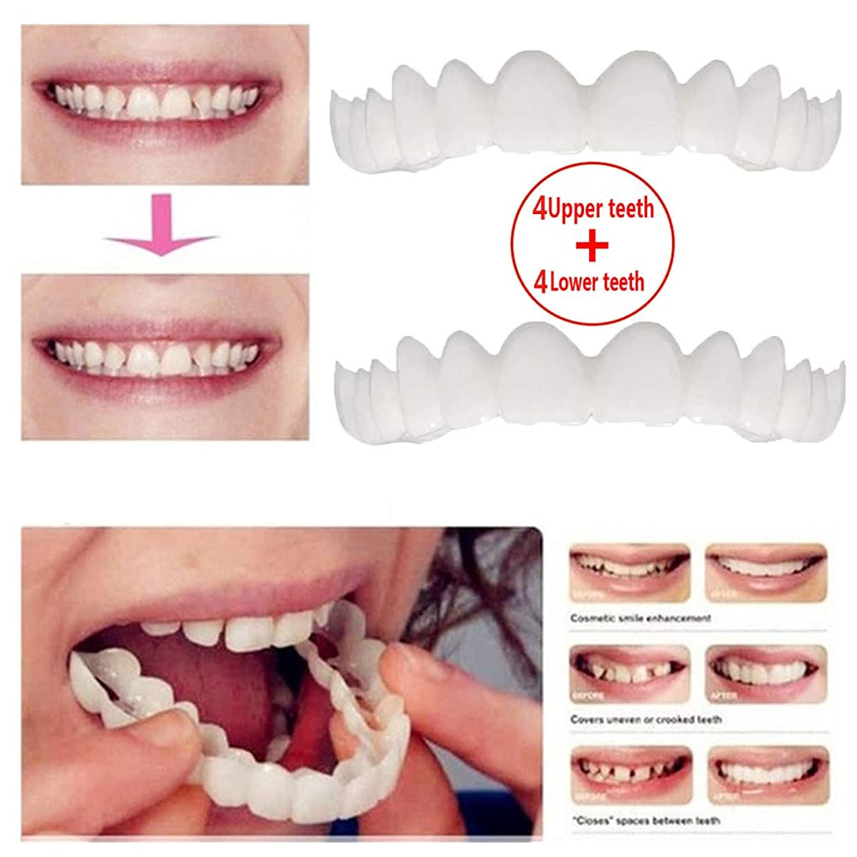 手を差し伸べるフットボール文房具上歯4本+下歯4本、化粧歯、仮歯ベニアブレース