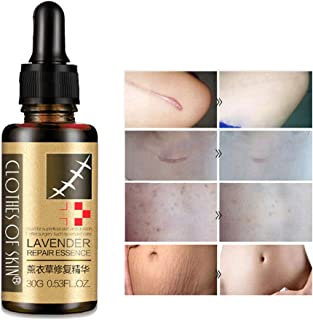 Comtervi Esencia para eliminación de cicatrices aceite esencial de lavanda reparadora elimina acné quemaduras estrías...