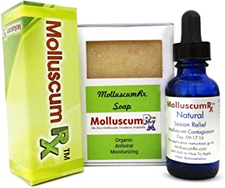 MolluscumRx (1 Bottle & Soap) Eliminates Molluscum! Baby Safe REFERRED & Sold by Dermatologists Nationwide! Pain-Free! Organic! Guaranteed!