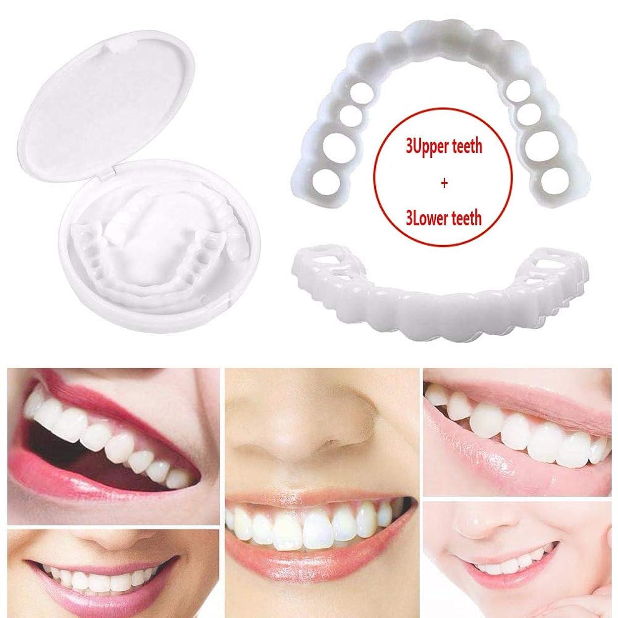 オークランドによると規則性3組の一時的な歯の白くなること、一時的な化粧品の歯の義歯の化粧品は収納箱が付いているブレースを模倣しました,3upperteeth+3lowerteeth