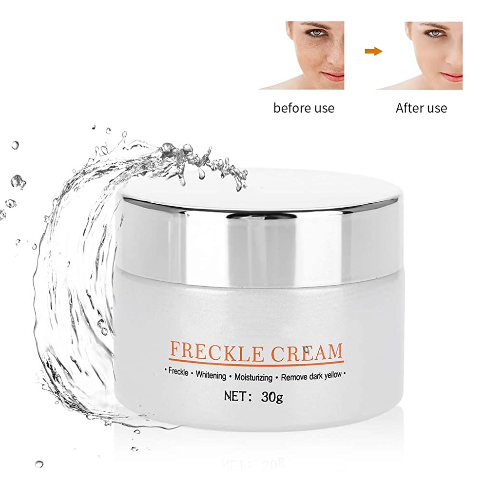 スペクトラム貧しいワゴンSemmeそばかすの除去剤のクリーム、暗い点のための血清の取り外しを傷つける顔の皮は傷を修理します傷をします