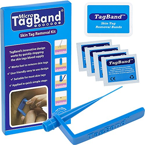 TagBand - Remover Device for Small to Medium Skin Tags