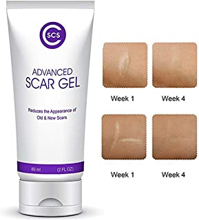 CSCS Most Effective Scar Remover Cream with Hydrolyzed Collagen & Vitamin E - Heals Old & New Scars from Cuts, Acne, Stretch Marks, Burns & Post Surgeries Scars - Fast Results, for All Skin Types 2 oz