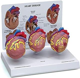人間の臓器モデル、心臓病理モデル、正常な心臓の解剖学の縮小バージョン、心筋梗塞、うっ血性心不全