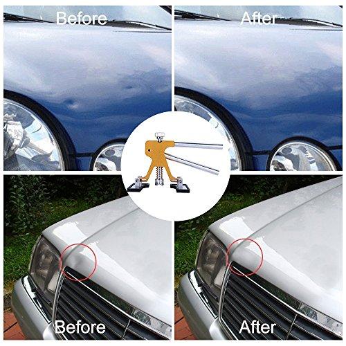 Glisten Auto Dent Puller Kit