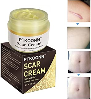 Scar Removal,Acne Scar Removal Cream,Skin Repair,Scar Cream Gel Scar Treatment for Face and Body Scar,Daily Body Cream to Minimize & Prevent Stubborn Old or New Marks and Scars.
