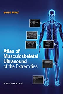 Atlas of Musculoskeletal Ultrasound of the Extremities