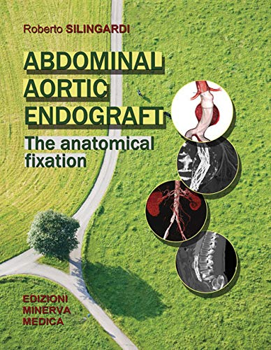 Abdominal aortic endograft. The anatomical fixation