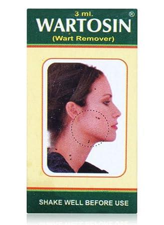 wart treatment ayurvedic medicine electroliza pentru detoxifiere