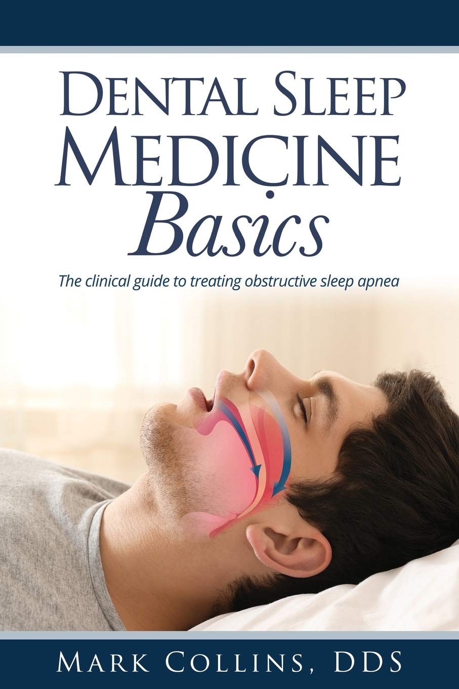 Image OfDental Sleep Medicine Basics: The Clinical Guide To Treating Obstructive Sleep Apnea