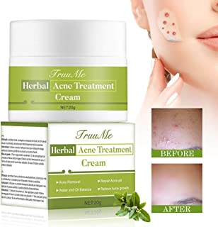 Acne Treatment, Acne Removal, Pimple Cream, Advanced Anti Acne Cream, Remove Acne, Repair Acne Natural/Quickly