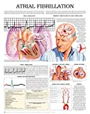 Atrial Fibrillation e chart: Full illustrated
