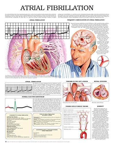 Atrial Fibrillation e chart: Full illustrated (English Edition)
