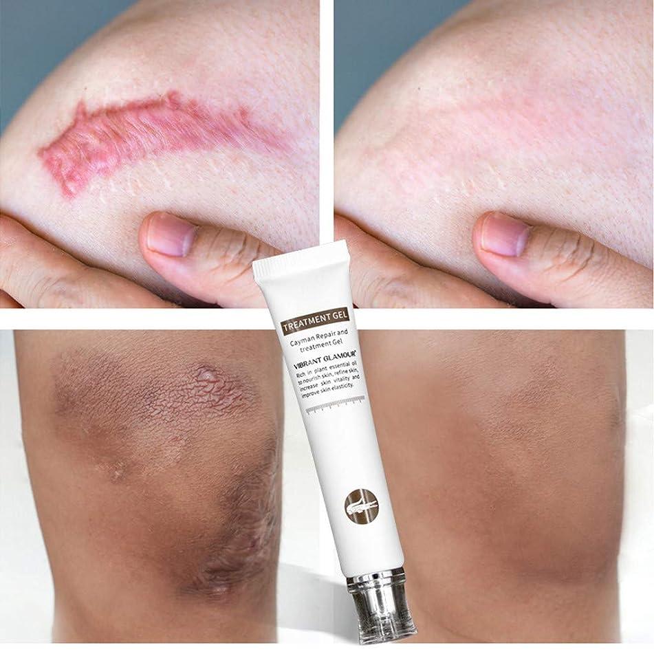 ?? Kiorc Crocodile Repair Scar Cream Removal Scar Acne Treatment Marks for Face or Body