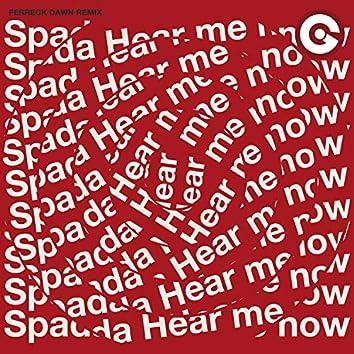 Hear Me Now (Ferreck Dawn Remix)